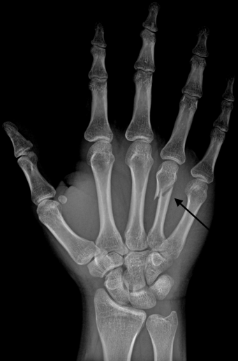 Neck_Fracture_of_the_Fourth_Metacarpal_Bone